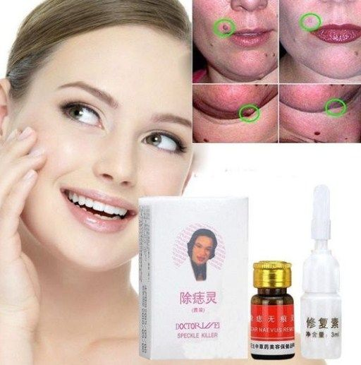 Buy Skin Tag Removal Cream At Lowest Price Skin Tag Removal