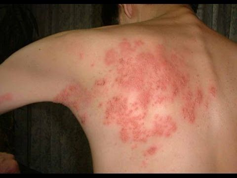 Recurring Shingles Pain: An Unwelcome Encore