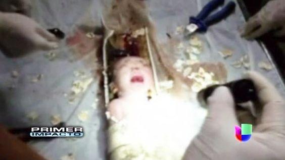 Impactante fue el rescate de un recién nacido que quedo atascado en una tuberia y tanto socorristas como médicos lucharon contra reloj para liberarlo y evitar que muriera asfixiado.