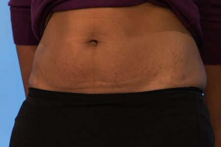 How To Get Rid Of Stretch Marks 0
