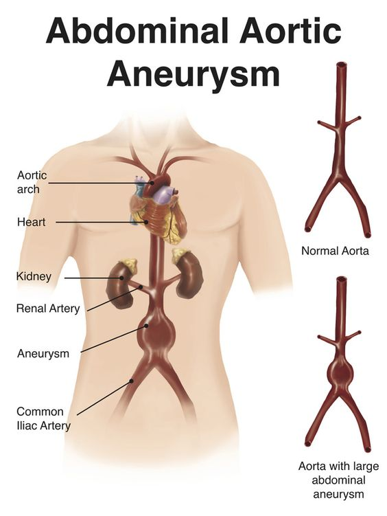 Anurism caused by sex