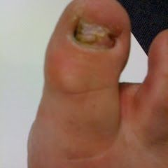 Check this out for Nail Fungus Cure Info! #zetaclear #nail_fungus_treatment #onychomycosis_treatment