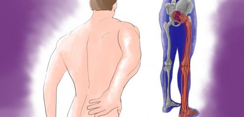 Pin On Severe Lower Back Pain