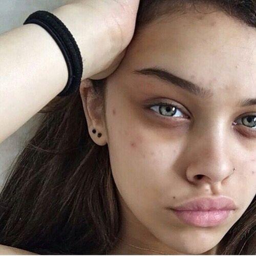 acne rea 2016