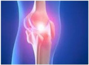 Different types of arthritis like osteoarthritis, rheumatoid arthritis can affect the knees, know the causes, symptoms and treaments available for knee joint disease.