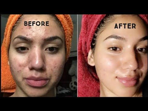 How To Get Rid Of Pimple And Acne Marks