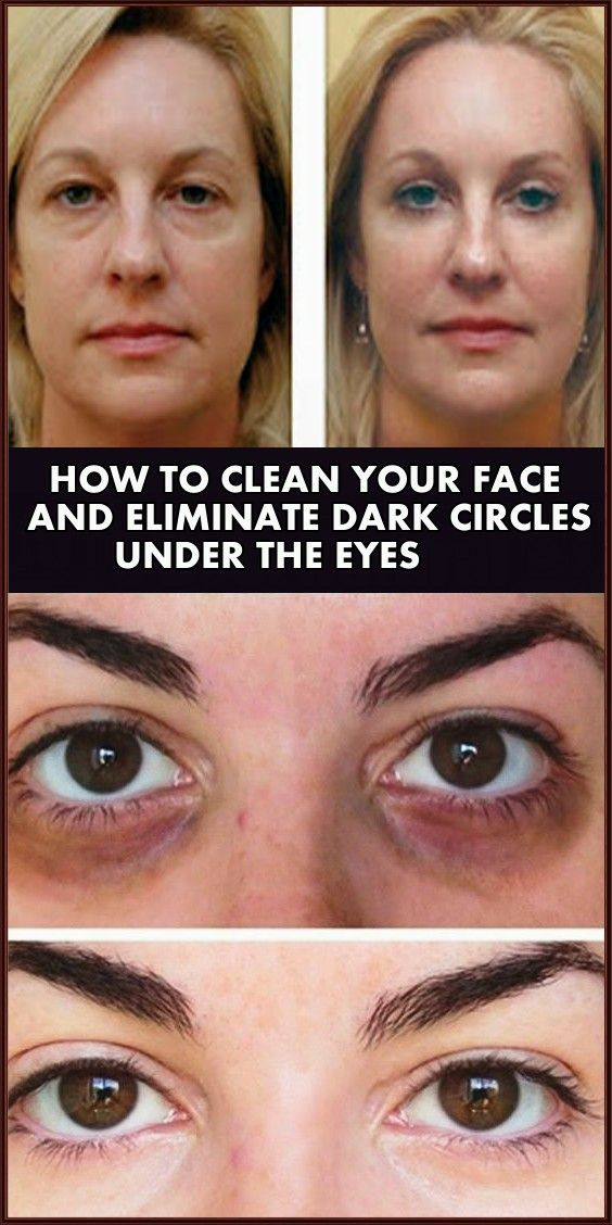 How To Clean Your Face And Eliminate Dark Circles Under The Eyes With Just One Component Beauty 4 Yo Dark Circles Dark Circles Under Eyes Dark Circles Makeup