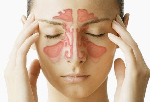 Dolor de cabeza y dolor de garganta sinusal