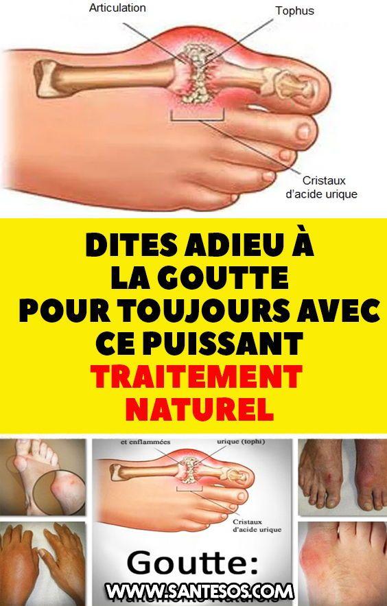 Acide Urique Traitement Par Les Plantes : acide, urique, traitement, plantes, Remèdes, Maison