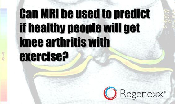 Will Exercise Make My Arthritis Worse: MRI May Help Decide - Regenexx®
