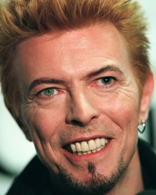 David Bowie has two different colored eyes, which typically is caused by heterochromia iridum. However, he does not have two different colored irises.  In 1962, Bowie was in a fight which left him with a permanently dilated pupil, which causes his left eye to appear to be a different color.