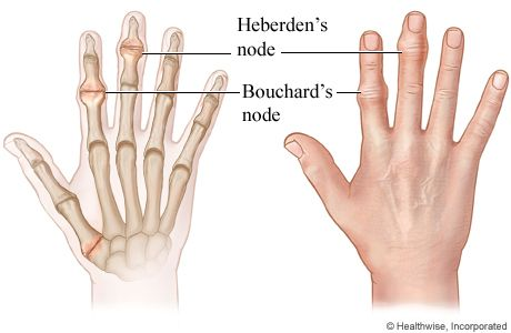 What Are the Treatments for Bone Spurs in Hands