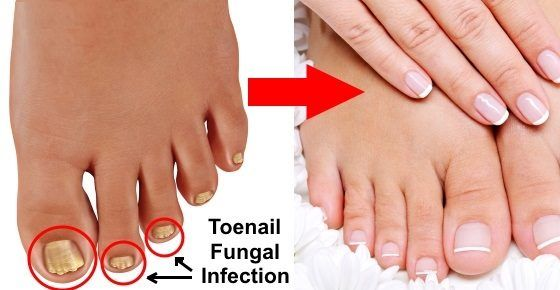Simple and Effective Natural Cures for Toenail Fungus