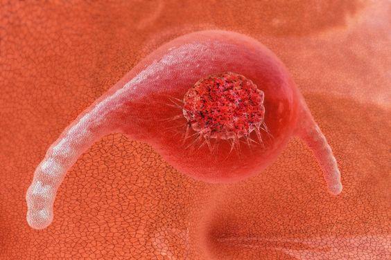 """""""Vor nunmehr 65 Jahren verstarb die US-amerikanische Farmarbeiterin Henrietta Lacks an Krebs. Ihr Tod führte zu einer medizinischen Sensation. Die ersten menschlichen Zellen, die sich jemals in einem Labor vermehrt und für mehr als nur einige Tage überlebt haben."""""""