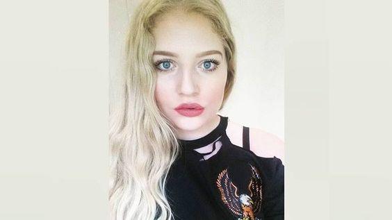 #La extraña enfermedad que hace a una joven verse fea - Rosario3.com: Informe21.com La extraña enfermedad que hace a una joven verse fea…