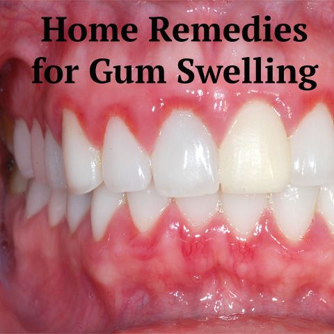 Pin On Healthy Gums