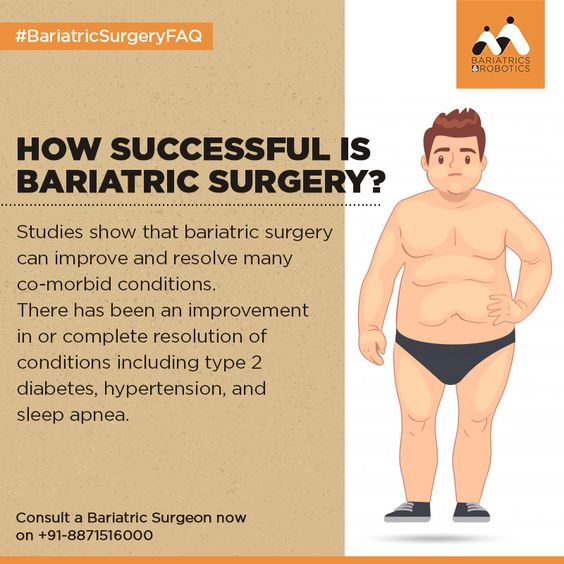 How successful is Bariatric Surgery?