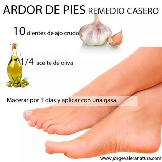 remedios para ardor en los pies