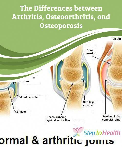 36++ Is osteoarthritis and osteoporosis the same ideas