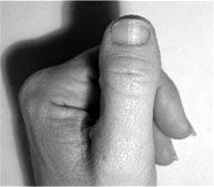 clubbed thumbs - Google Search