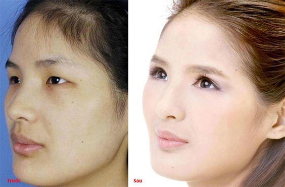 Bao nhiêu tuổi thì chỉnh hình sụp mí mắt là phù hợp nhất?