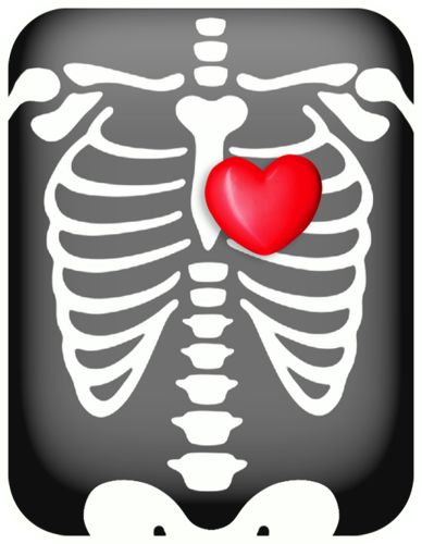 x ray clipart free - photo #8