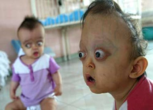 Agent Orange birth defects