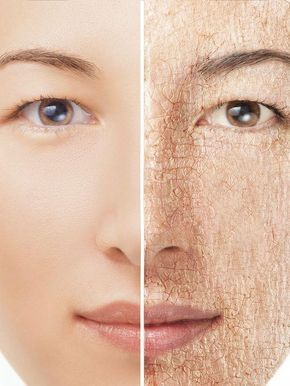 Dry skin can lead to flakiness, causing cracks on sensitive areas of the body like lips, hands, feet, and even the face. The dryness in the atmosphere removes moisture from the skin, making it look patchy and flaky.