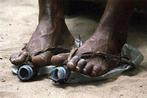 This pic makes my heart bleed with sorrow. We all take for granted putting on a pair of shoes and some people own hundreds of pairs.