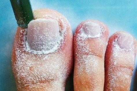 Increíble El Aceite De Ricino Y Bicarbonato De Sodio Pueden Tratar Más De 21 Problemas De Salud Hoy Aprendí S Aceite De Ricino Remedios Bicarbonato De Sodio
