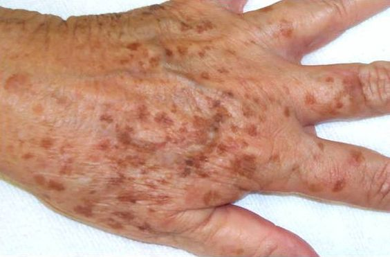 Age spots (lentigo senilis or lentigo solaris) are types of shade spot.  Age spots are little, level, obscured spots on the skin (rosy chestnut to dark in shading) that more often than not happen on the hands, face and midsection or different zones frequently presented to the sun. The most regular