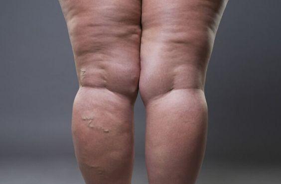 pierderea în greutate curesc lymphedema