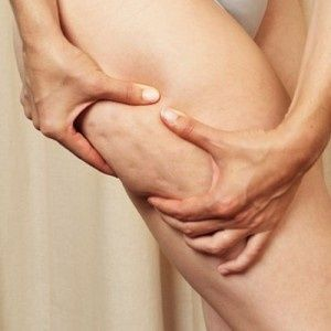 Cellulite-Shed it off..