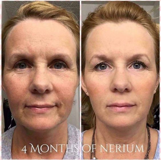 And this is why you want Nerium.  Message Me at : Neriumlaunch@gmail.com for more info and September Soecials