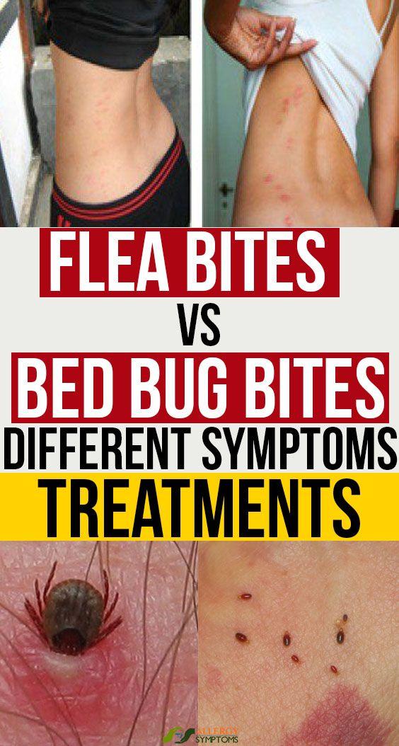 Flea Bites Vs Bed Bug Bites Different Symptoms Treatments