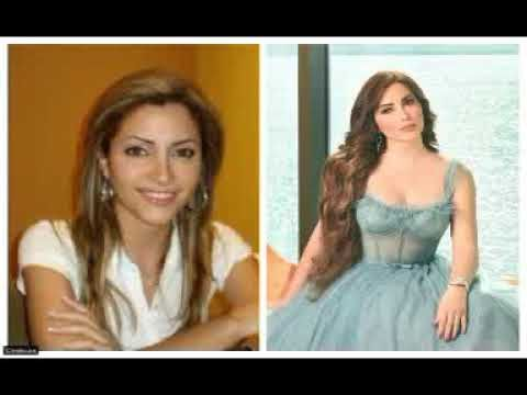 صور الفنانات العرب قبل وبعد تفتيح البشرة وقبل وبعد عمليات التجميل Fashion Formal Dresses Prom Dresses