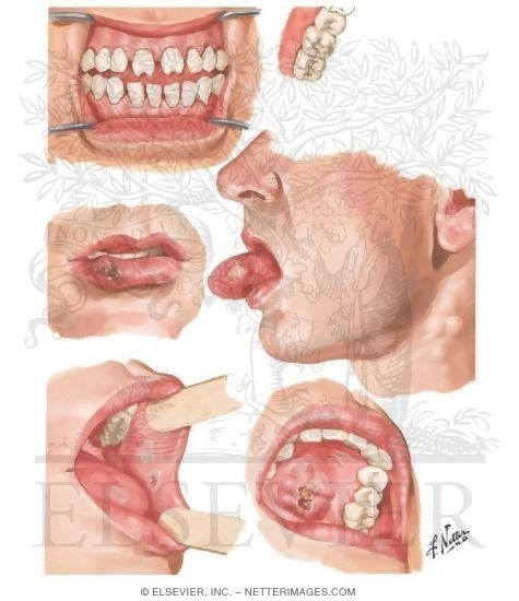 Syphilis Of Oral Cavity  Shkolle  Pinterest  Health -5088