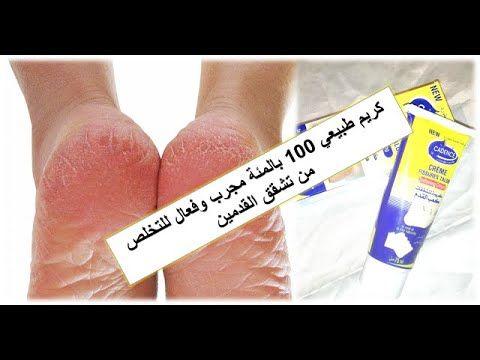 اروع كريم رخيص وفعال لعلاج تشقق القدمين والجلد الجاف Youtube Creme Brest Pill