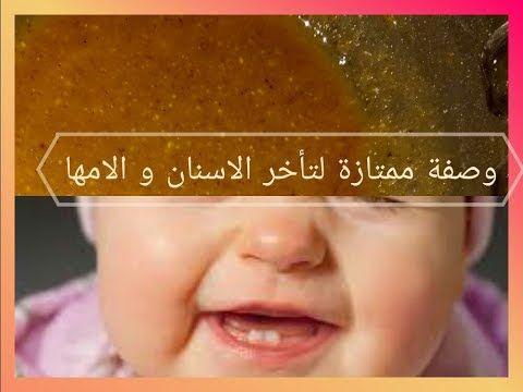وداعا لتاخر نمو الاسنان و الامها المزعج عند الأطفال الرضع بوصفة سحرية من اول استعمال Youtube