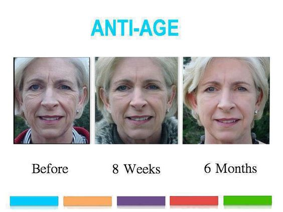 Before and after results after 6 months on Anti-Age regimen. www.karlagust.myrandf.com