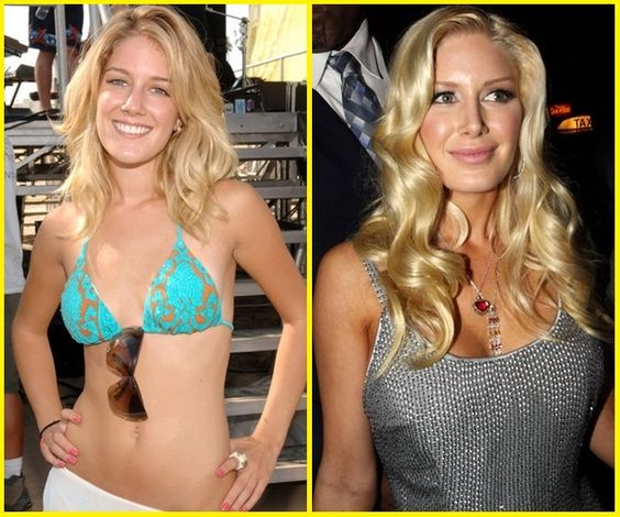 Celebrities With Plastic Surgery Heidi Montag Courteney: Heidi Montag Plastic Surgery Before And After