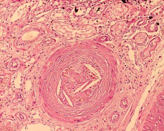Êmbolos de colesterol em uma artéria interlobular.
