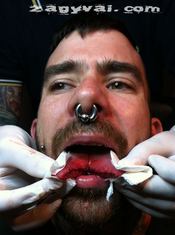 tongue splitting with fresh sutures