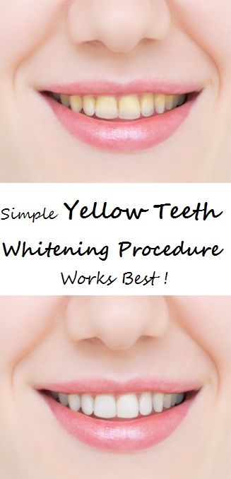 Healthy and white teeth are something that everybody desires. But to achieve this, it can take a lot of effort and time. You can go to the dentists for a whitening procedure, but it will cost you a lot, plus it`s not that healthy for your teeth. There are many whitening gels you can buy, but most of them are ineffective.