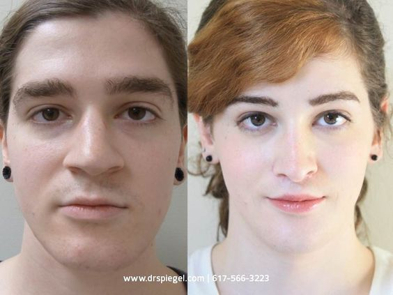 Male To Female Transgender Before And After  Facial -5844