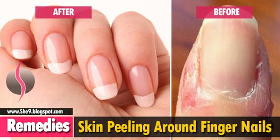 Skin Peeling Around Finger Nails Causes Consequences And 10 Home Remedies She9 Change The Life Style Peeling Nails Skin Peeling On Fingers Peeling Skin