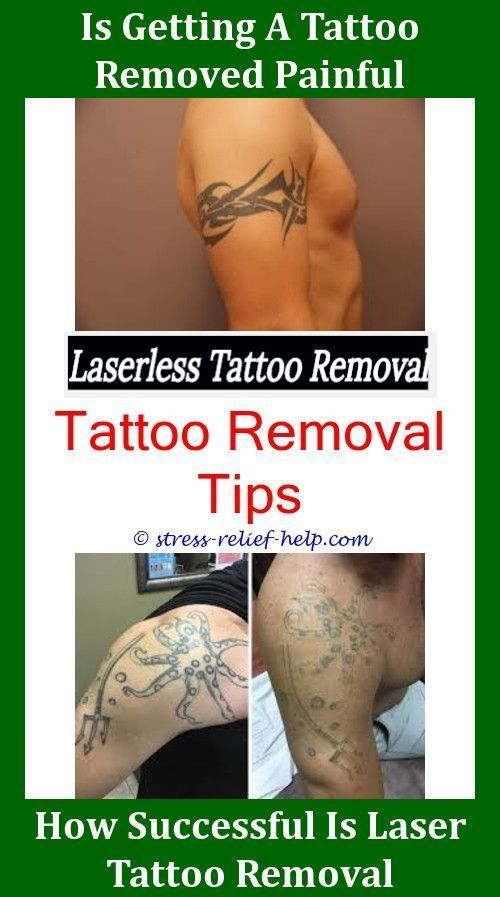 Colorful Tattoo Removal Tattoo Removal Results Laser Tattoo Removal Jobs Tattoo Removal Keloid Tattoo Removal Cost Laser Tattoo Removal Tattoo Removal Results