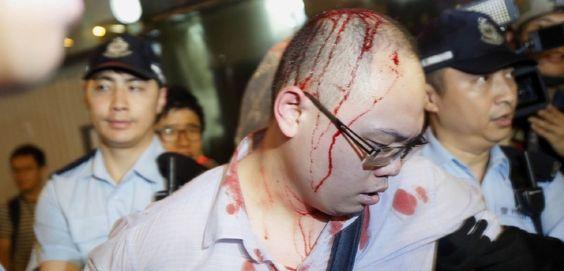 Přes pátek se demonstrace v Hongkongu vyostřily.