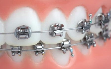 Harga Pasang Behel Gigi di Dokter Gigi :http://hamilplus.com/harga-pasang-behel-gigi-atas-bawah/