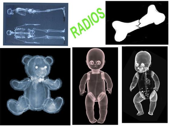 radiographies pour jouer au docteur